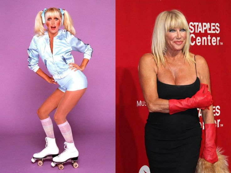 SUZANNE SOMERS, 72 YEARS OLD