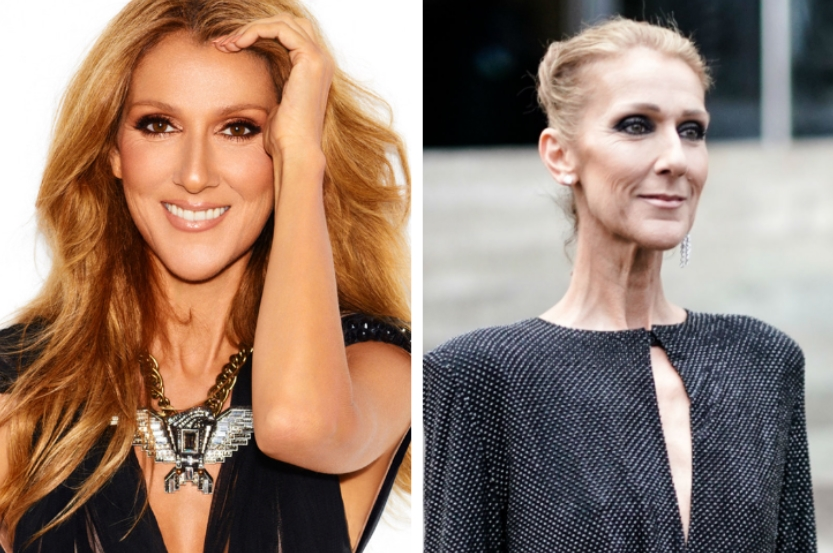 CELINE DION, 51 YEARS OLD