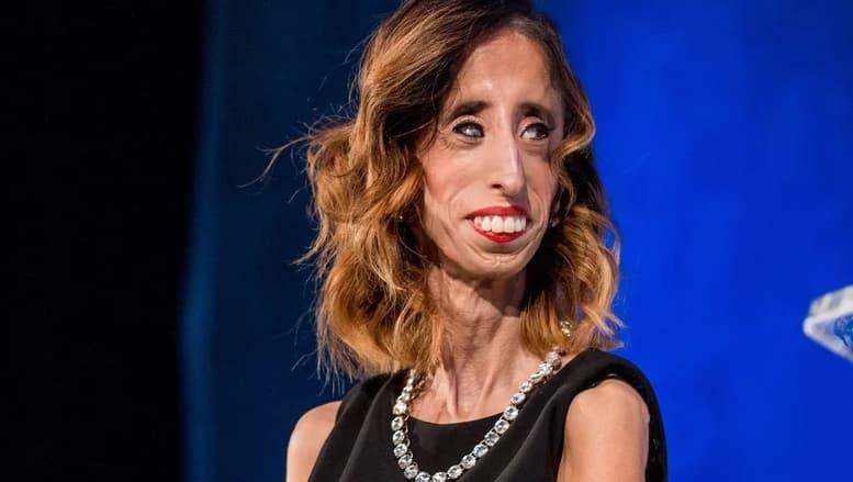 world u2019s ugliest woman  her inspiring story and impact