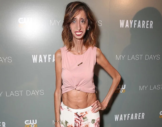 The Worlds Ugliest Woman
